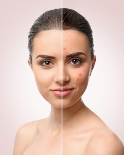 before and after acne treatment